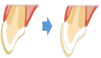 歯の色は何年たっても変わらないのですか?
