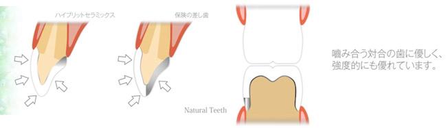 ハイブリッドセラミックスは色が歯に似ているので見た目が良い