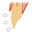 セラミックで出来ていますので。唾液を吸収しないため、歯の色の後戻りがありません。
