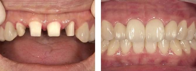 ファイバーコアは、歯に似たしなやかさがあるため、根を壊しにくく、特に、歯質の大部分を失った歯に最適な土台です。