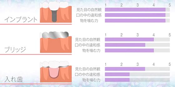 インプラント、ブリッジ、入れ歯、比較
