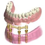 インプラント総入れ歯