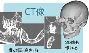 CT撮影1