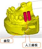 治療フロー概念図一般歯科医院