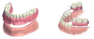 部分入れ歯 総入れ歯