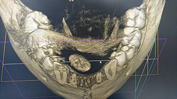 唾石摘出の手術