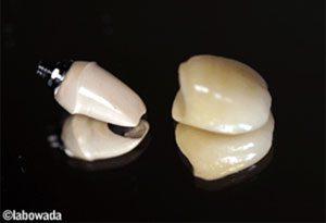 新しい歯のセット