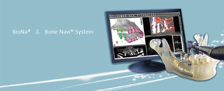 BioNa&Bone Navi System